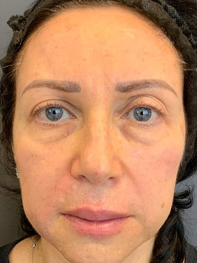 Fillers Gallery - Patient 25734636 - Image 2