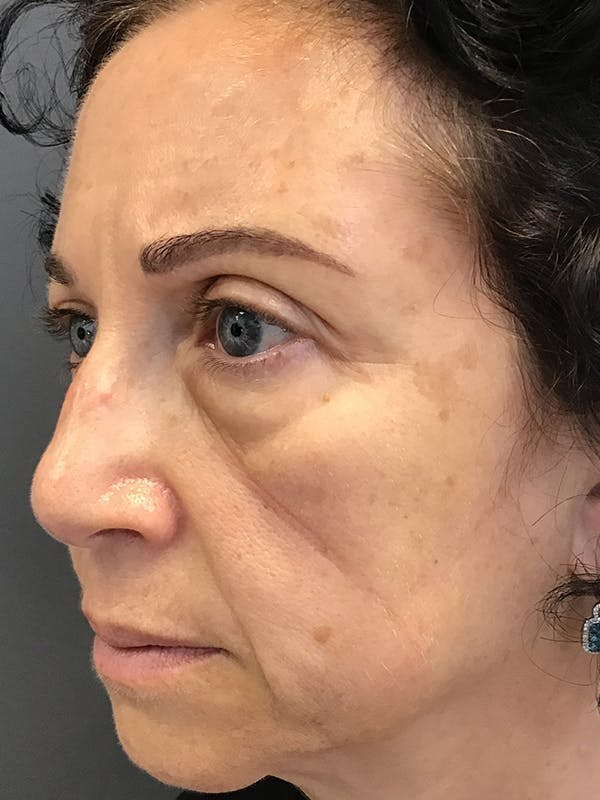 Fillers Gallery - Patient 25734636 - Image 3