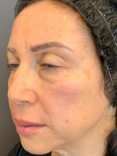 Fillers Gallery - Patient 25734636 - Image 4