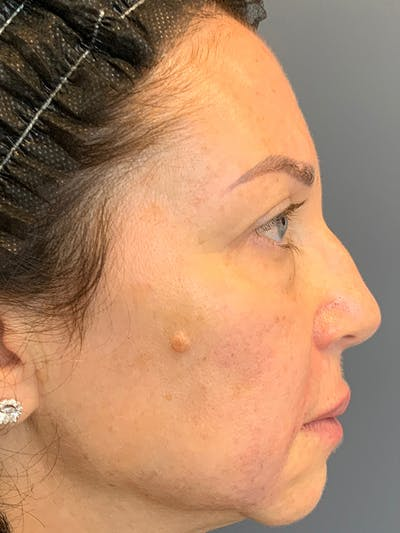 Fillers Gallery - Patient 25734636 - Image 10