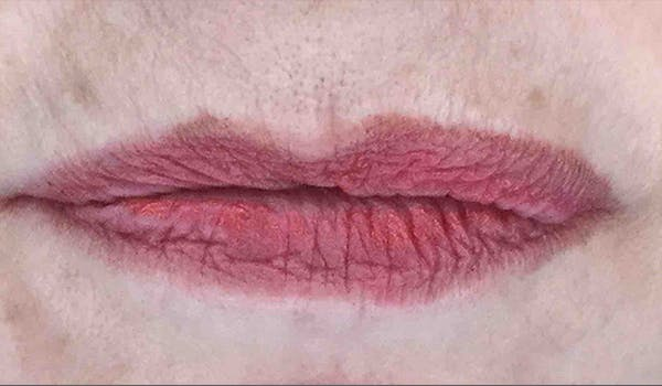 Fillers Gallery - Patient 29481926 - Image 1
