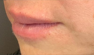 Fillers Gallery - Patient 29481925 - Image 4