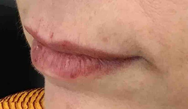 Fillers Gallery - Patient 29481926 - Image 3