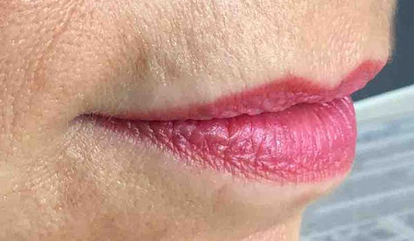 Fillers Gallery - Patient 29481926 - Image 5