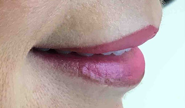 Fillers Gallery - Patient 29481926 - Image 6