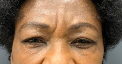 Botox Gallery - Patient 39901981 - Image 1