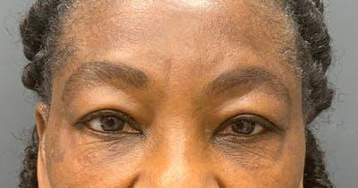 Botox Gallery - Patient 39901981 - Image 2