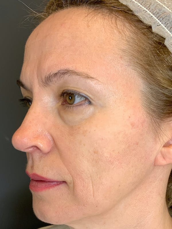 Fillers Gallery - Patient 40123031 - Image 1