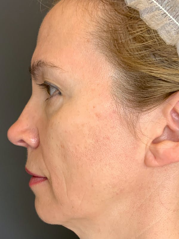 Fillers Gallery - Patient 40123031 - Image 3