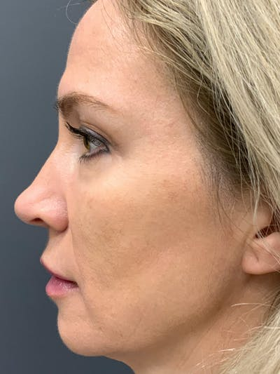 Fillers Gallery - Patient 40123031 - Image 4