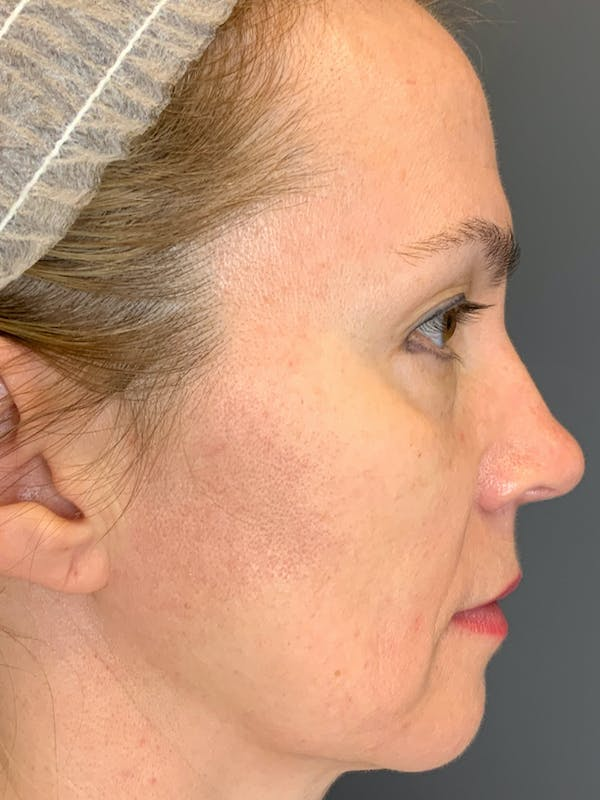 Fillers Gallery - Patient 40123031 - Image 7