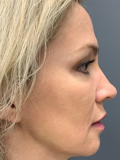 Fillers Gallery - Patient 40123031 - Image 8