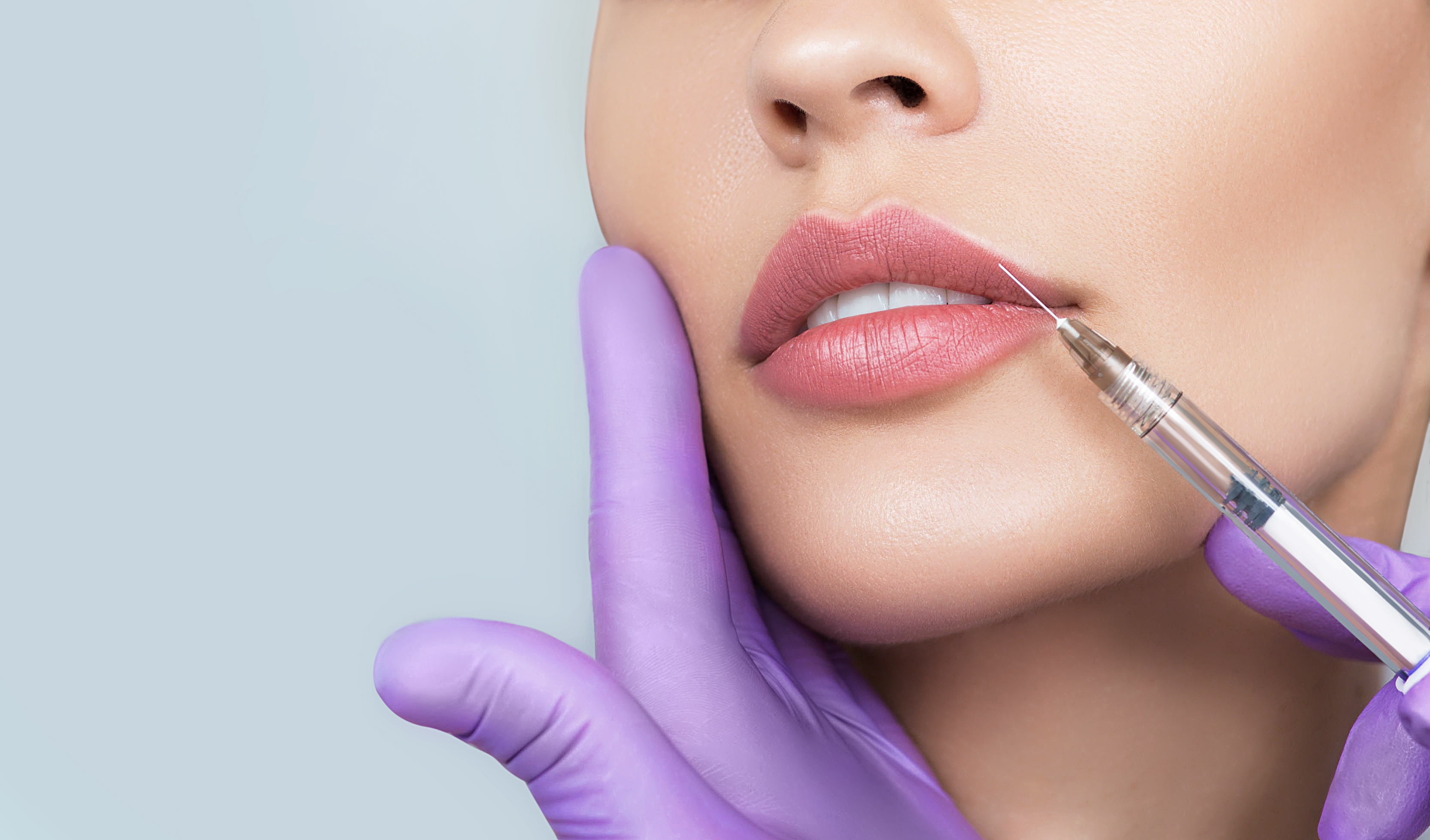 JunoMediSPA Blog | Everything You Need to Know About the Russian Lip Filler Technique