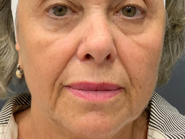 Fillers Gallery - Patient 51844889 - Image 1