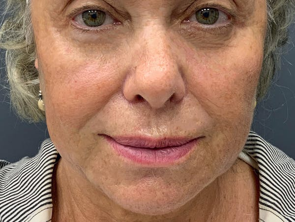 Fillers Gallery - Patient 51844889 - Image 2