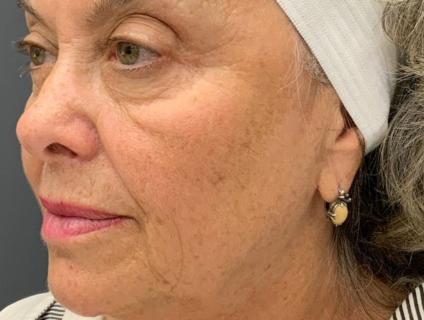 Fillers Gallery - Patient 51844889 - Image 3