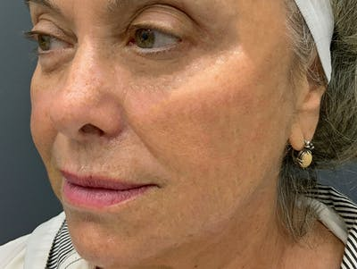 Fillers Gallery - Patient 51844889 - Image 4