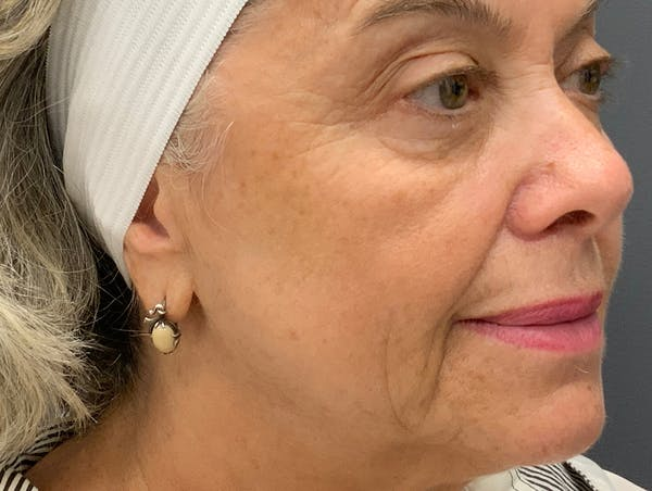 Fillers Gallery - Patient 51844889 - Image 5