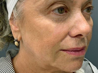 Fillers Gallery - Patient 51844889 - Image 6