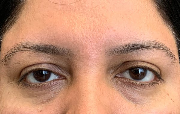 Fillers Gallery - Patient 51844890 - Image 1