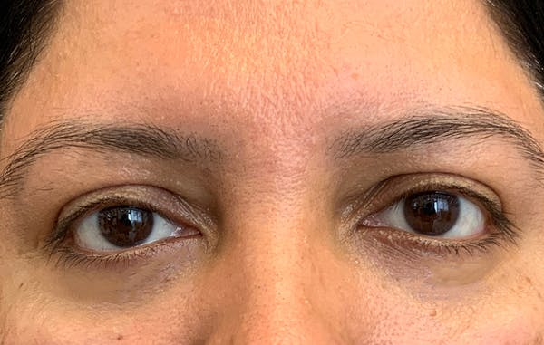 Fillers Gallery - Patient 51844890 - Image 2