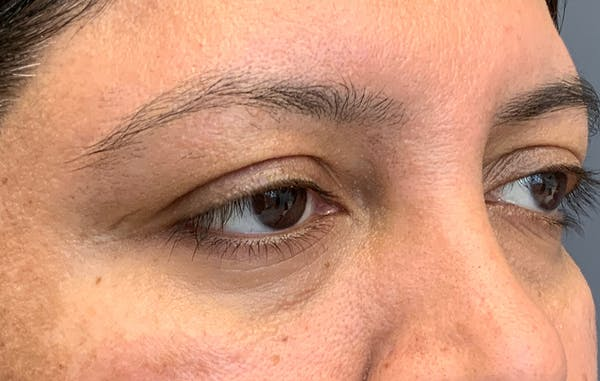 Fillers Gallery - Patient 51844890 - Image 3