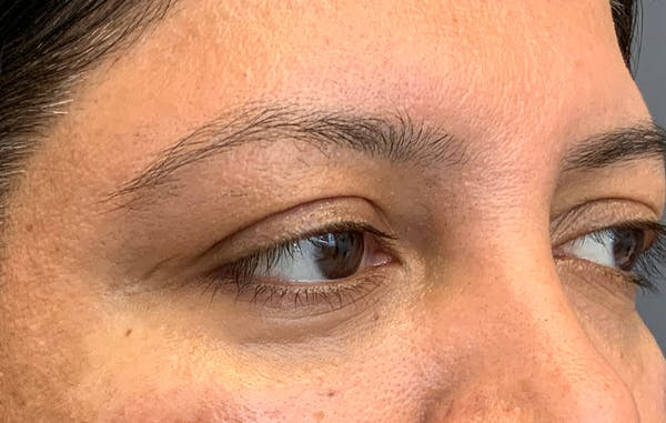 Fillers Gallery - Patient 51844890 - Image 4
