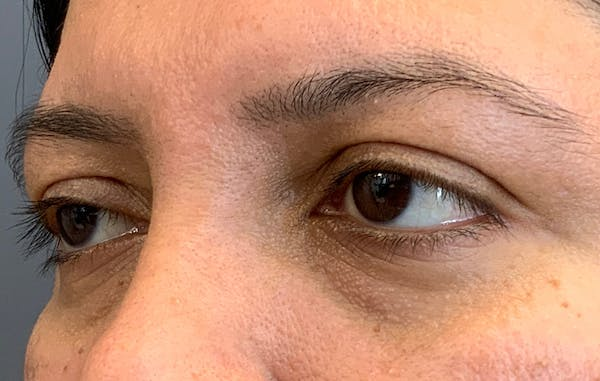 Fillers Gallery - Patient 51844890 - Image 5