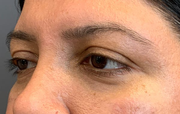Fillers Gallery - Patient 51844890 - Image 6