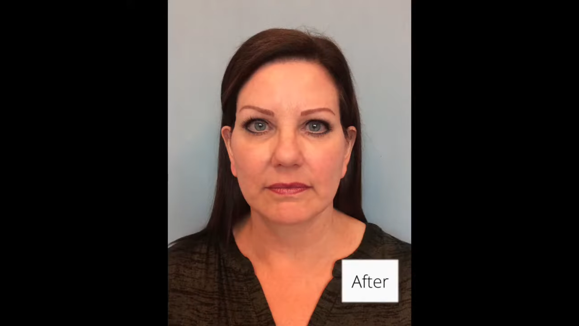 Facelift results with Dr. Admire in Phoenix and Scottsdale