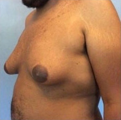 Male Breast Reduction Gallery - Patient 13947213 - Image 1