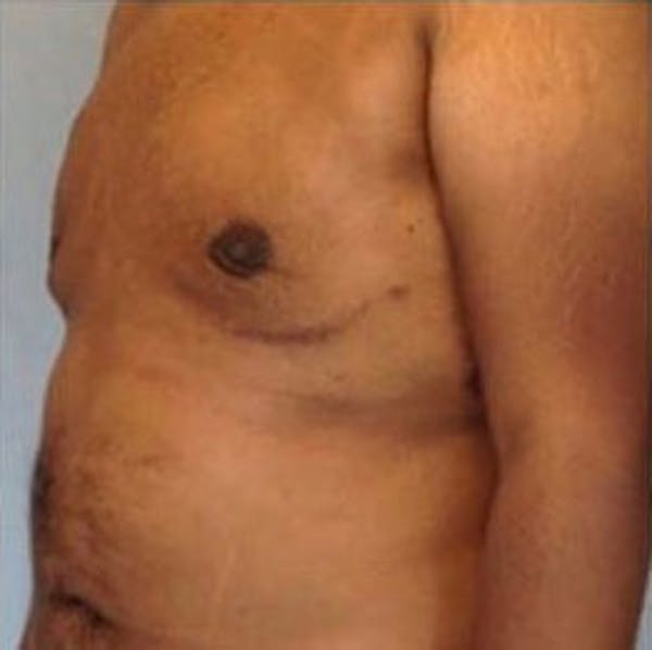 Male Breast Reduction Gallery - Patient 13947213 - Image 2