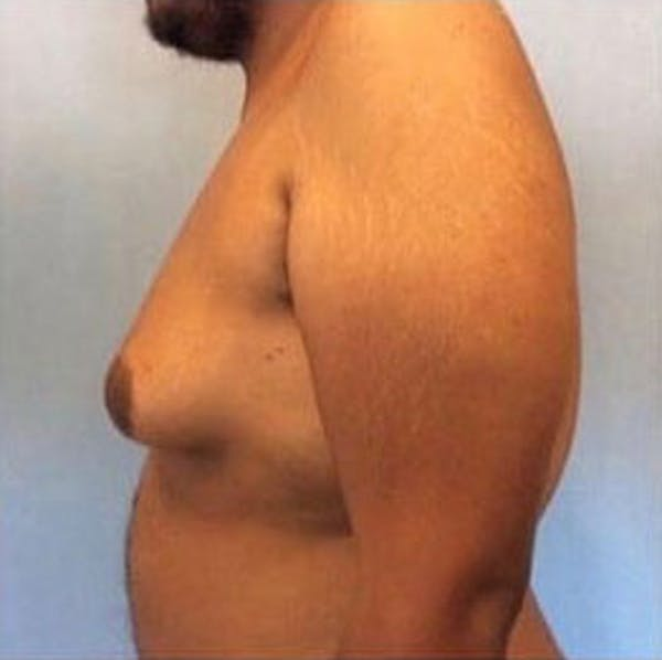 Male Breast Reduction Gallery - Patient 13947213 - Image 3