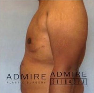 Male Breast Reduction Gallery - Patient 13947213 - Image 4