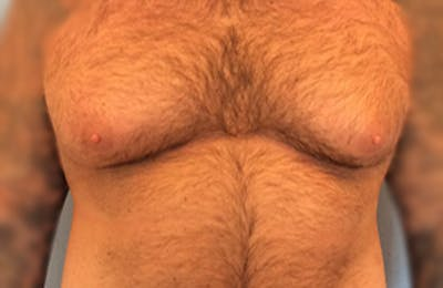Male Breast Reduction Gallery - Patient 13947214 - Image 1