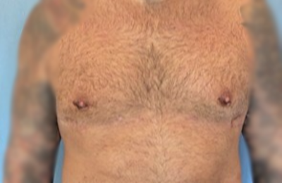 Male Breast Reduction Gallery - Patient 13947214 - Image 2
