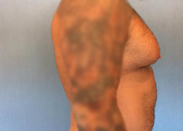 Male Breast Reduction Gallery - Patient 13947214 - Image 3