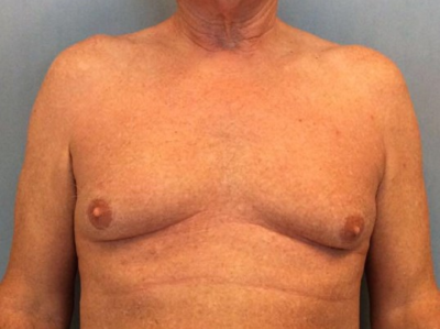 Male Breast Reduction Gallery - Patient 13947215 - Image 1