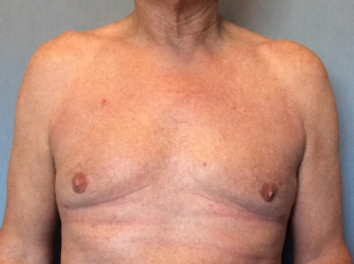 Male Breast Reduction Gallery - Patient 13947215 - Image 2