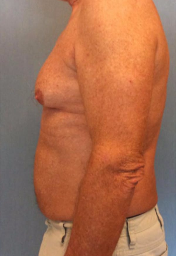 Male Breast Reduction Gallery - Patient 13947215 - Image 3