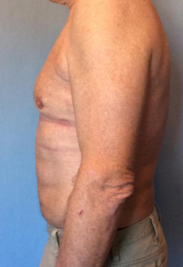 Male Breast Reduction Gallery - Patient 13947215 - Image 4