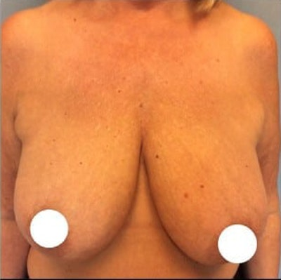 Breast Lift Gallery - Patient 10894500 - Image 1