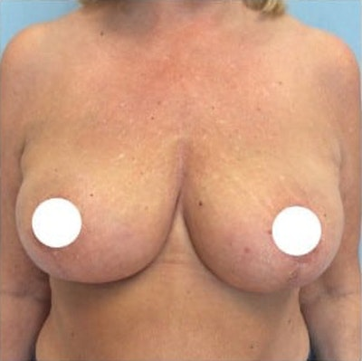 Breast Lift Gallery - Patient 10894500 - Image 2