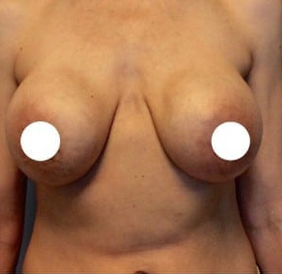 Breast Lift Gallery - Patient 10894502 - Image 1