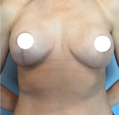 Breast Lift Gallery - Patient 10894502 - Image 2
