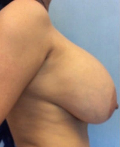 Breast Lift Gallery - Patient 10894503 - Image 1