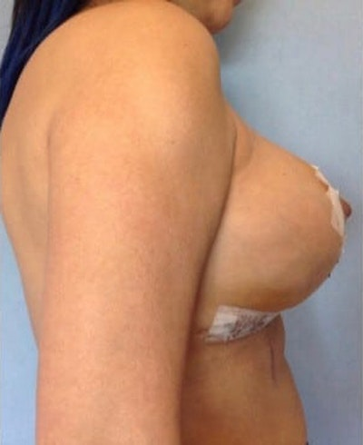 Breast Lift Gallery - Patient 10894503 - Image 2
