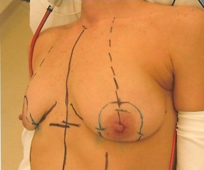 Breast Lift Gallery - Patient 10894504 - Image 1