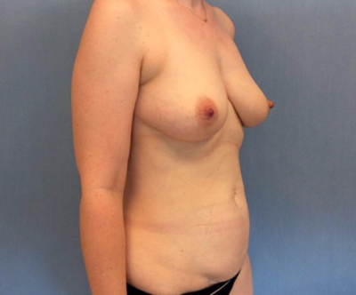 Breast Lift Gallery - Patient 10894506 - Image 1