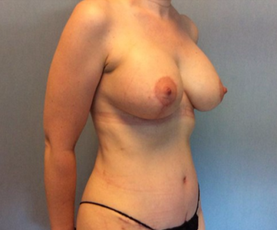 Breast Lift Gallery - Patient 10894506 - Image 2